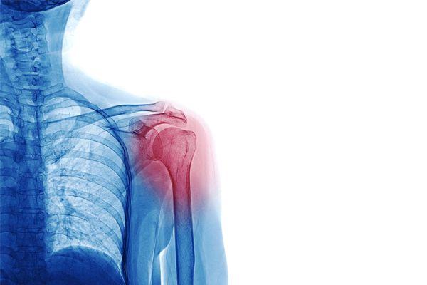 Cómo tratar tendinitis de hombro